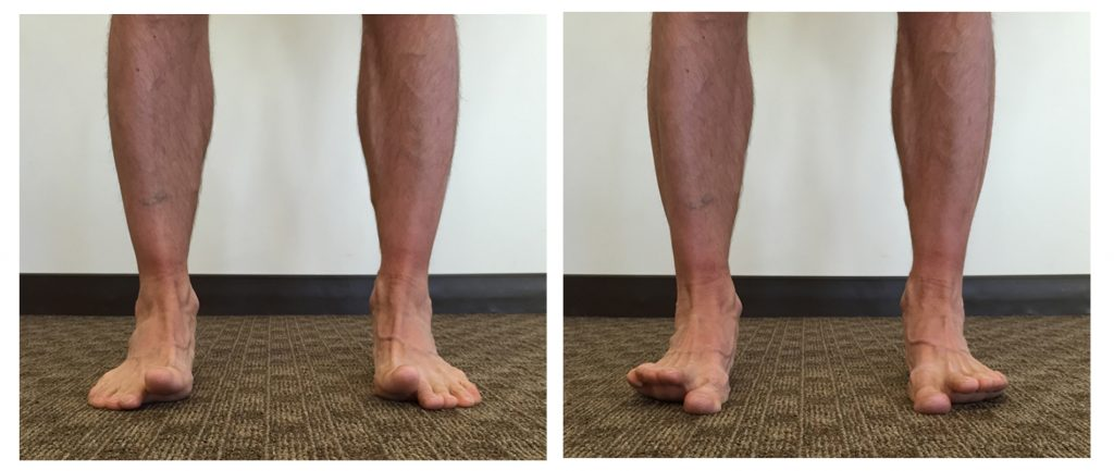 Get Your Feet In Control Dr Chad Waterbury Transforming - Elevate feet